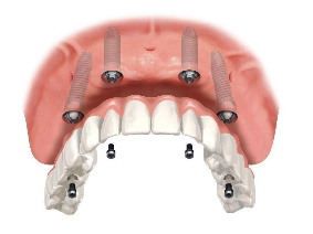protesis hibrida